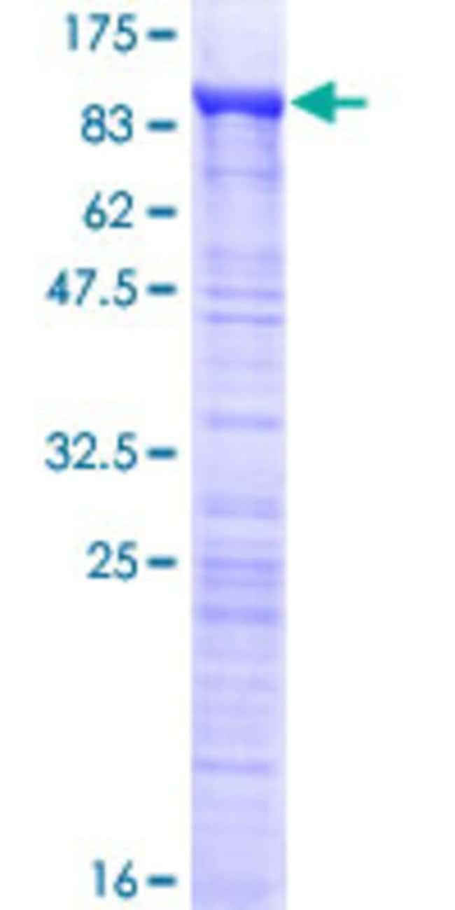 AbnovaHuman MED26 Full-length ORF (NP_004822.2, 1 a.a. - 600 a.a.) Recombinant