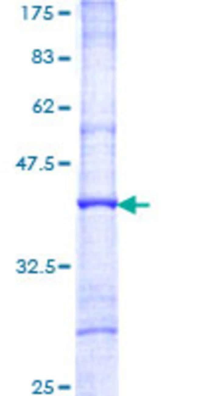 AbnovaHuman ITM2B Partial ORF (NP_068839, 146 a.a. - 245 a.a.) Recombinant