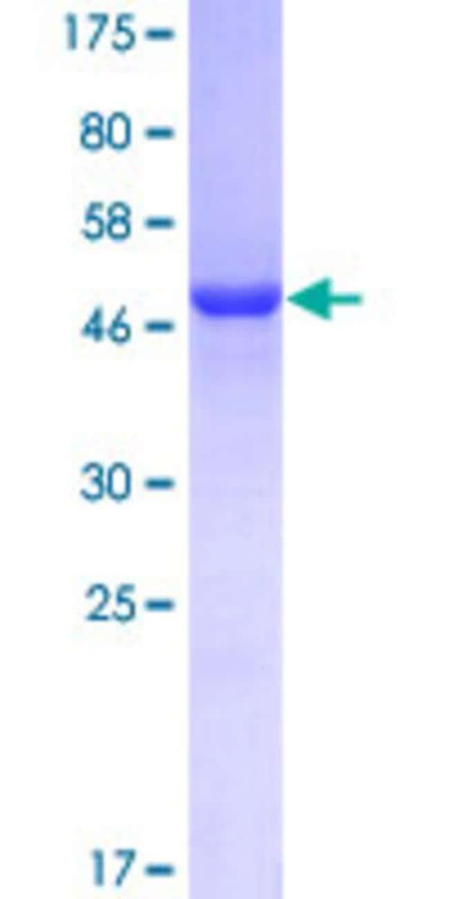 AbnovaHuman GSTO1 Full-length ORF (NP_004823.1, 1 a.a. - 241 a.a.) Recombinant