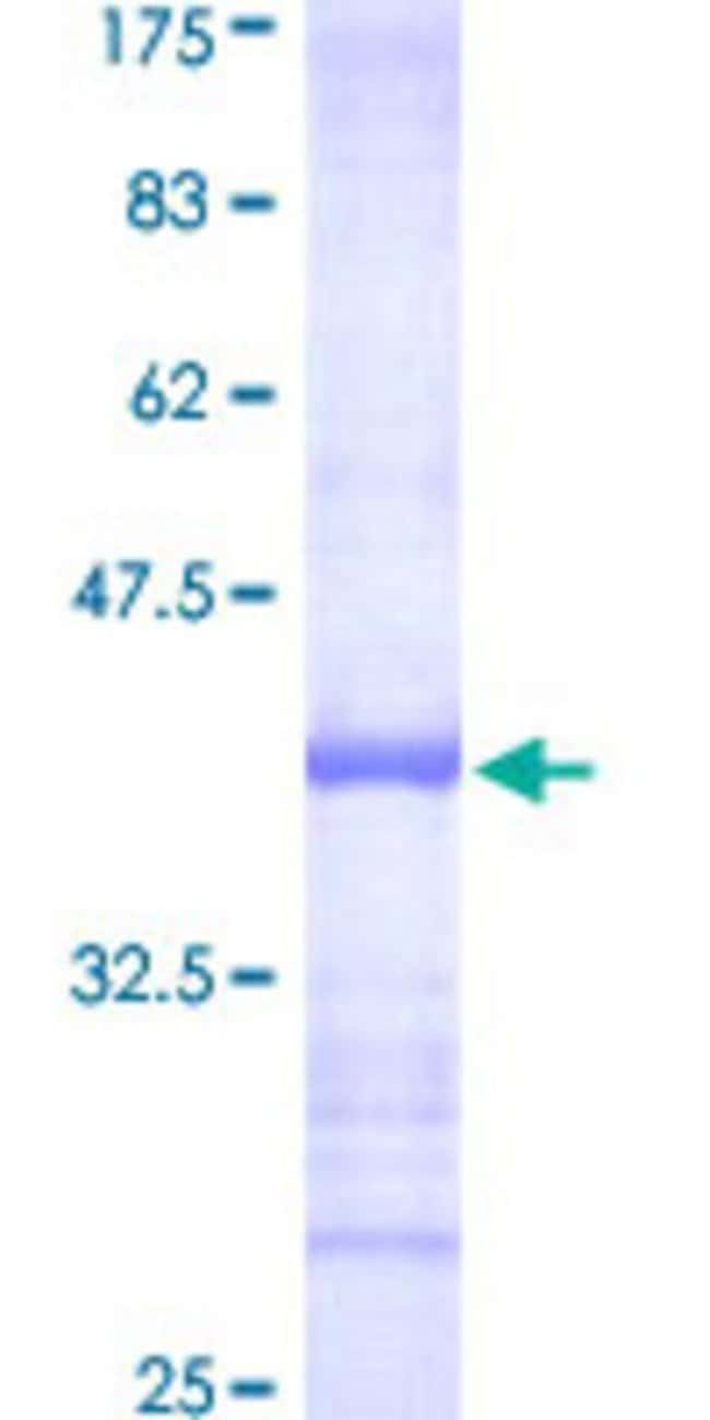 Abnova™Human GGPS1 Partial ORF (NP_004828, 201 a.a. - 300 a.a.) Recombinant Protein with GST-tag at N-terminal 25μg Abnova™Human GGPS1 Partial ORF (NP_004828, 201 a.a. - 300 a.a.) Recombinant Protein with GST-tag at N-terminal