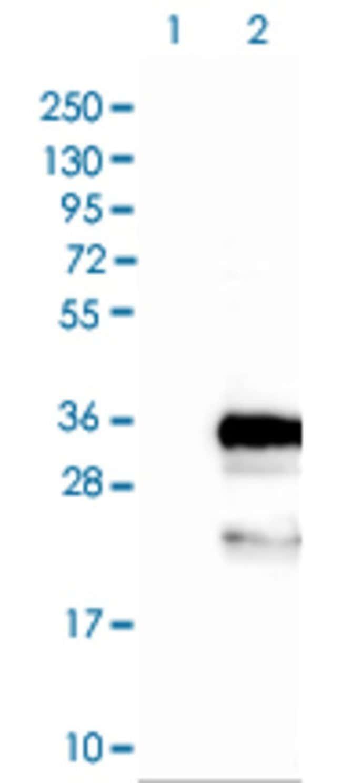 FBXO44 Rabbit anti-Human, Polyclonal , Abnova 100μL; Unlabeled:Antibodies