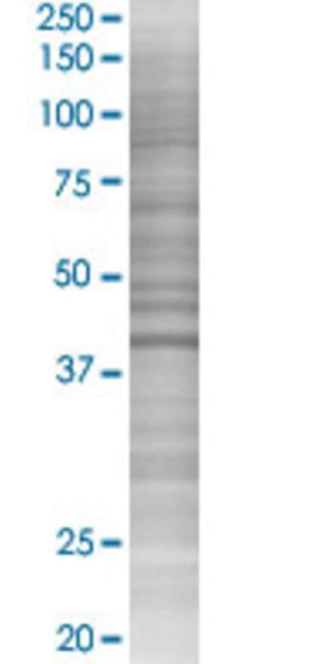Abnova HOMER1 293T Cell Transient Overexpression Lysate (Denatured) (T02)