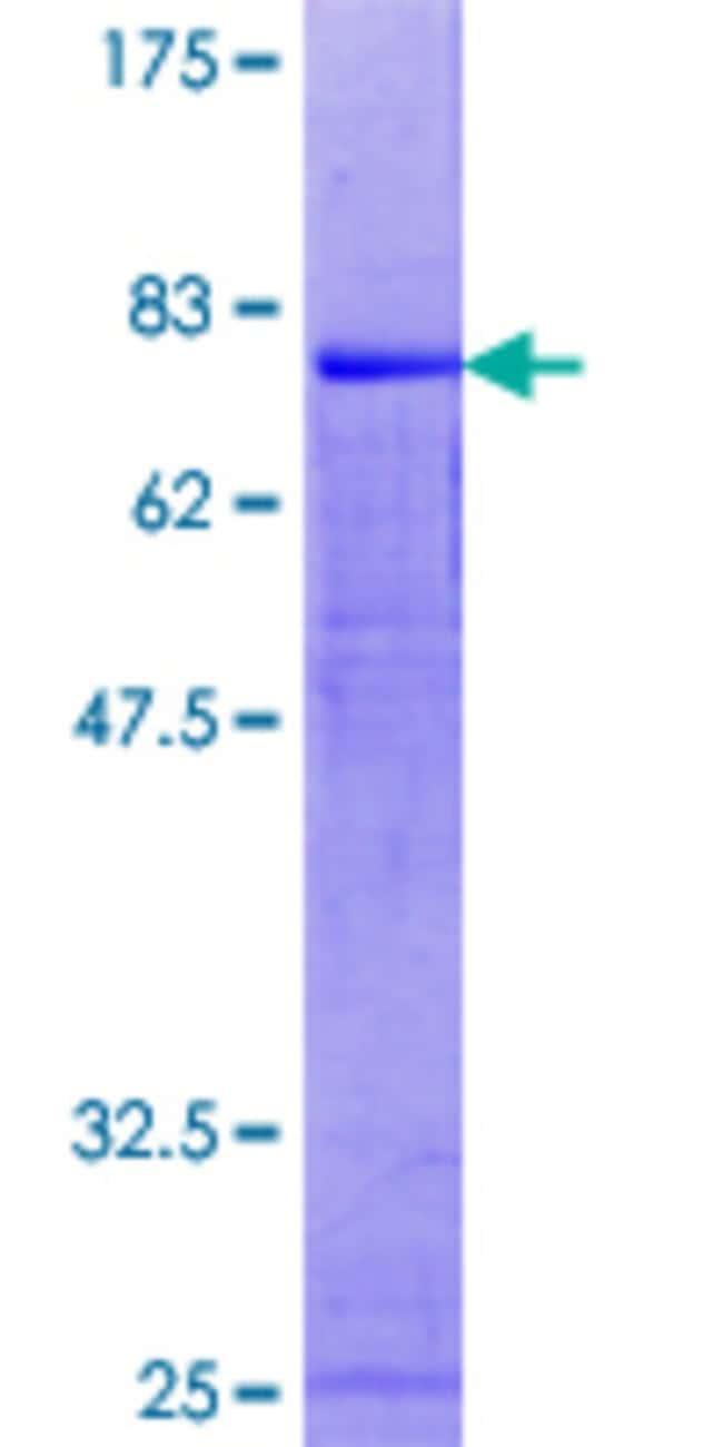 AbnovaHuman PRKCABP Full-length ORF (NP_036539.1, 1 a.a. - 415 a.a.) Recombinant