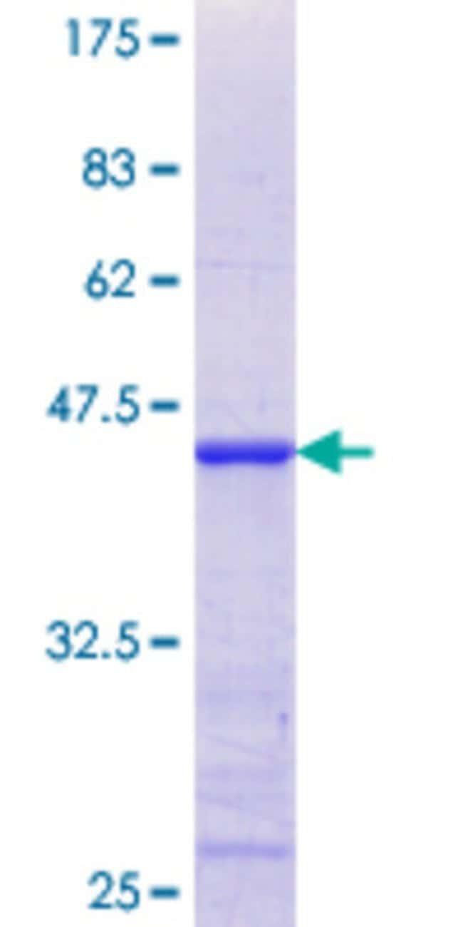 AbnovaHuman AKAP7 Partial ORF (NP_057461.1, 2 a.a. - 115 a.a.) Recombinant