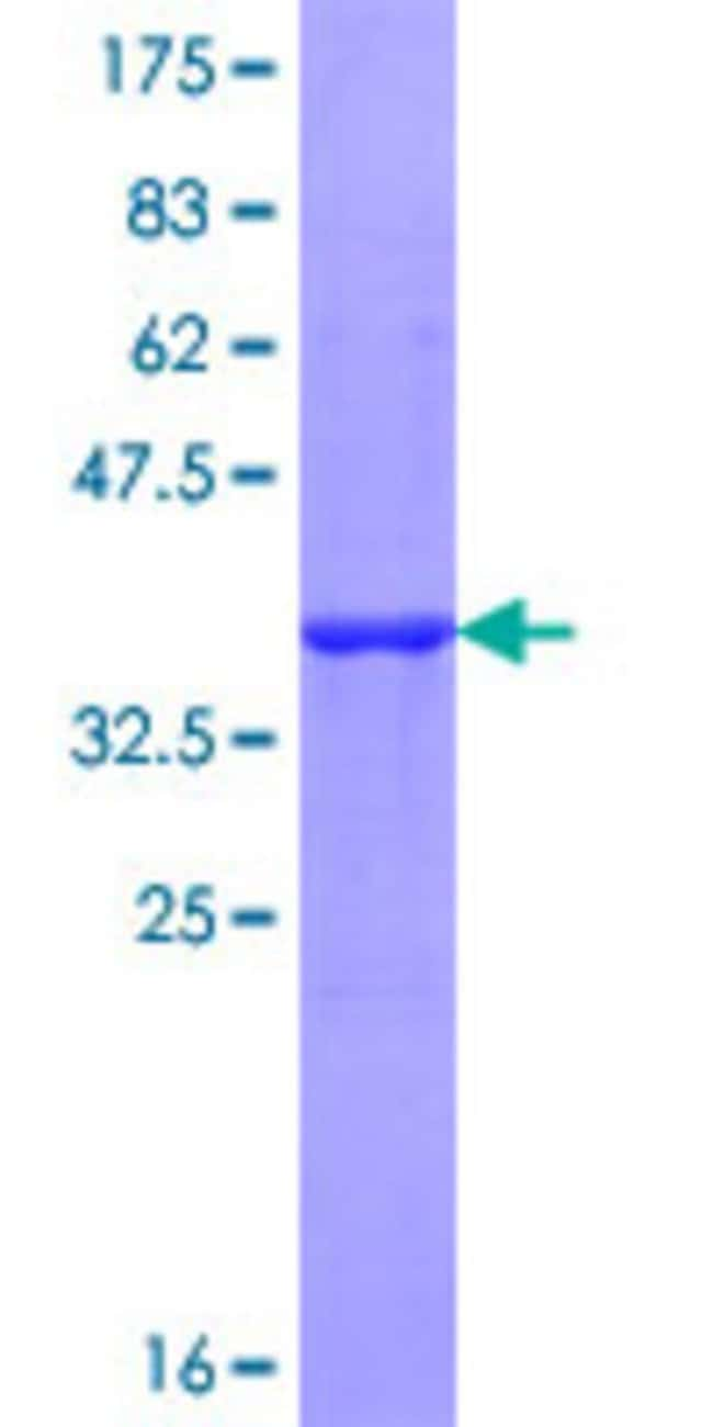 AbnovaHuman IL27RA Partial ORF (NP_004834, 33 a.a. - 132 a.a.) Recombinant