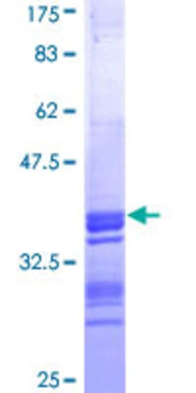 Abnova Human PCYT1B Partial ORF (NP_004836, 236 a.a. - 314 a.a.) Recombinant