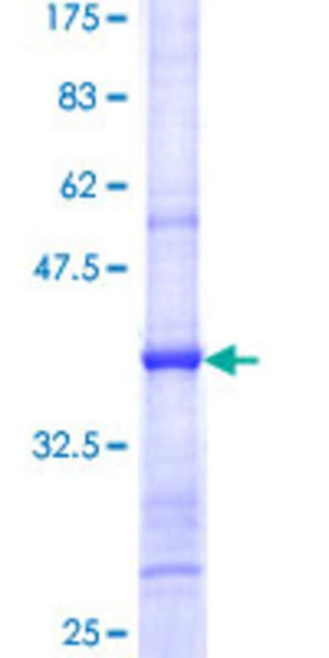 AbnovaHuman EIF4E2 Partial ORF (NP_004837, 146 a.a. - 245 a.a.) Recombinant
