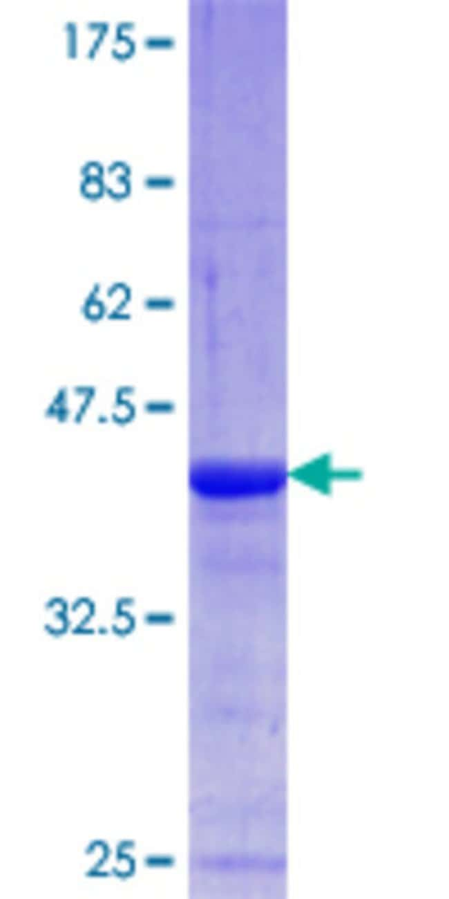 Abnova™Human AKAP6 Partial ORF (NP_004265.3, 2221 a.a. - 2318 a.a.) Recombinant Protein with GST-tag at N-terminal 10μg Abnova™Human AKAP6 Partial ORF (NP_004265.3, 2221 a.a. - 2318 a.a.) Recombinant Protein with GST-tag at N-terminal