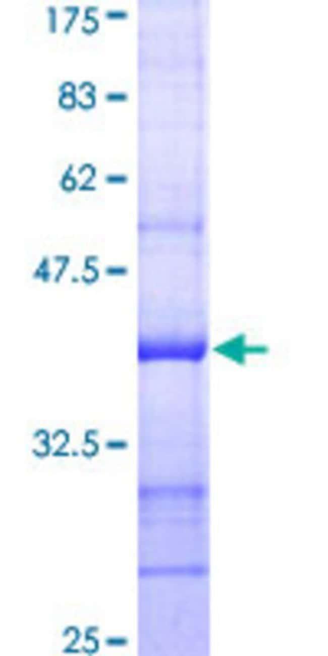 AbnovaHuman APG5L Partial ORF (AAH02699, 176 a.a. - 275 a.a.) Recombinant