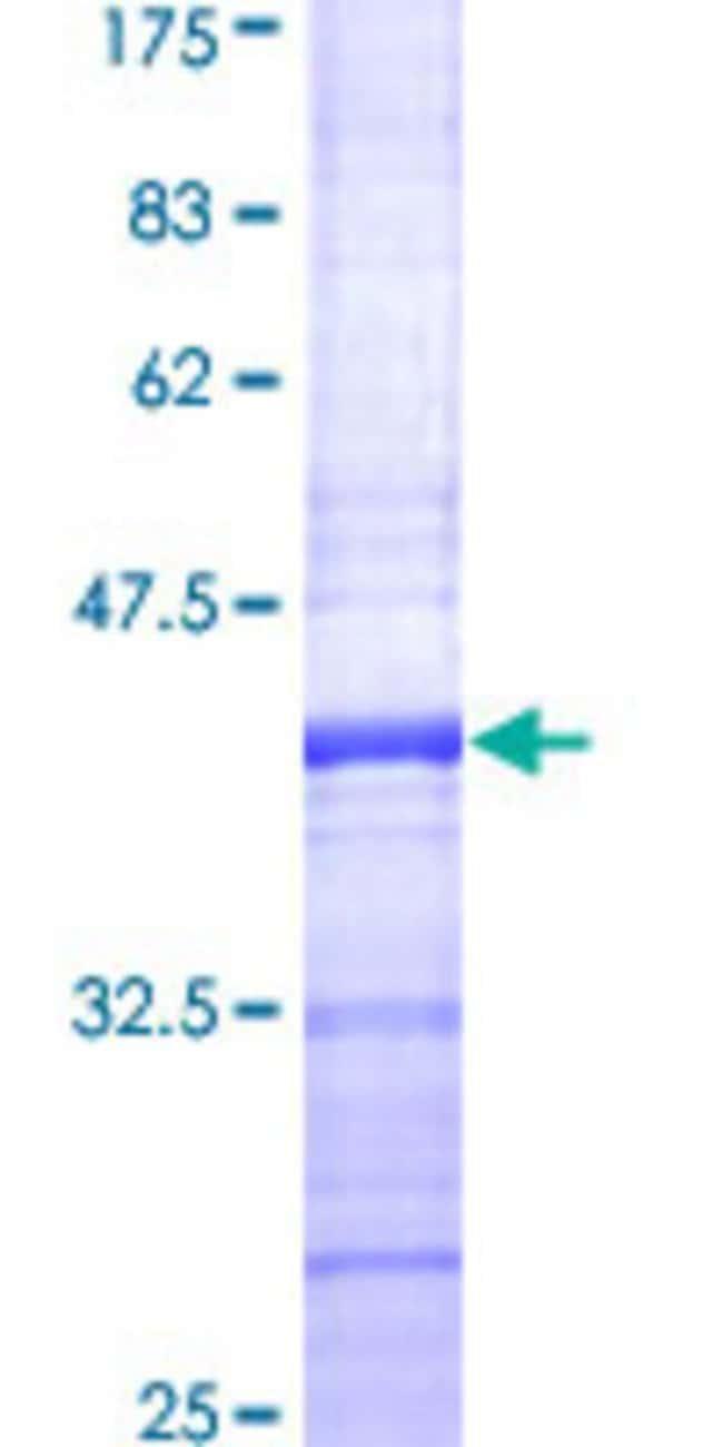 AbnovaHuman ROCK2 Partial ORF (NP_004841, 1279 a.a. - 1388 a.a.) Recombinant
