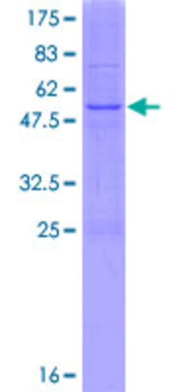 AbnovaHuman PIGL Full-length ORF (NP_004269.1, 1 a.a. - 252 a.a.) Recombinant