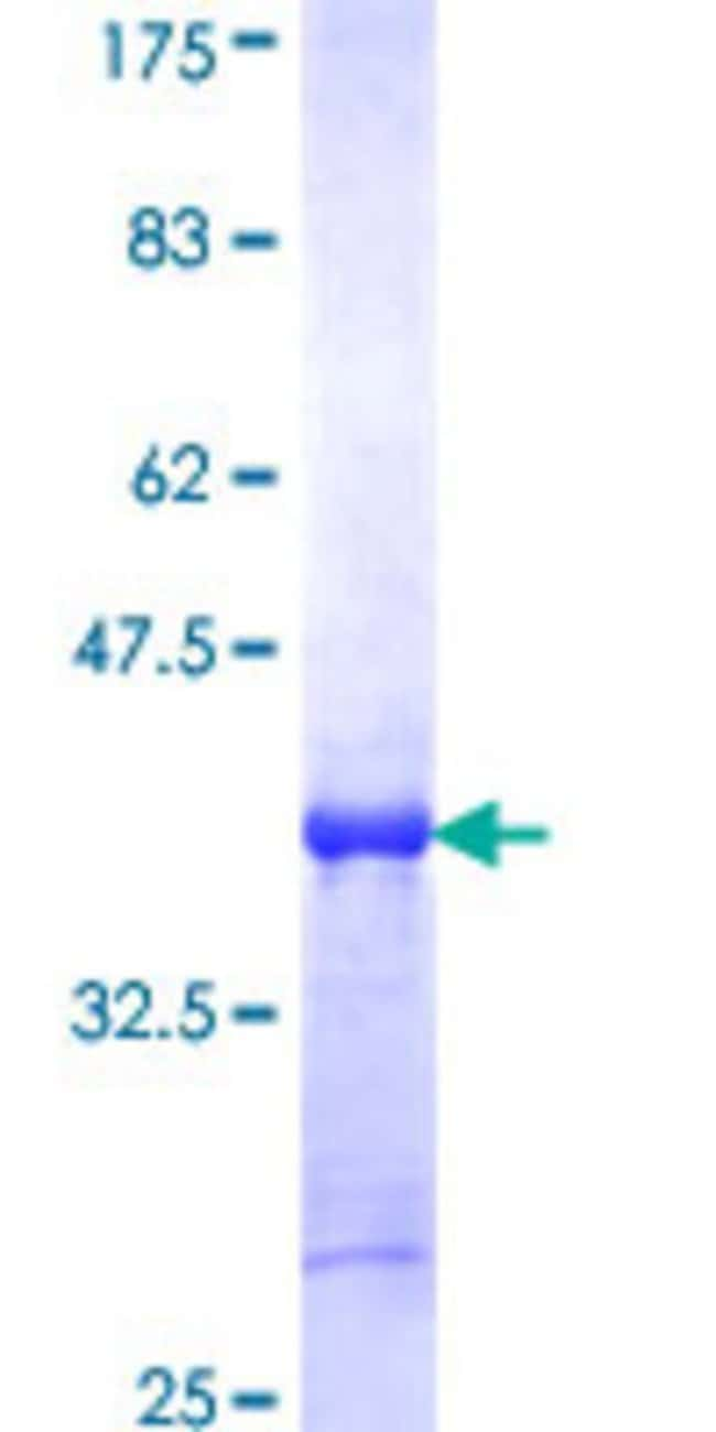 AbnovaHuman XAGE2 Partial ORF (NP_570133, 44 a.a. - 111 a.a.) Recombinant