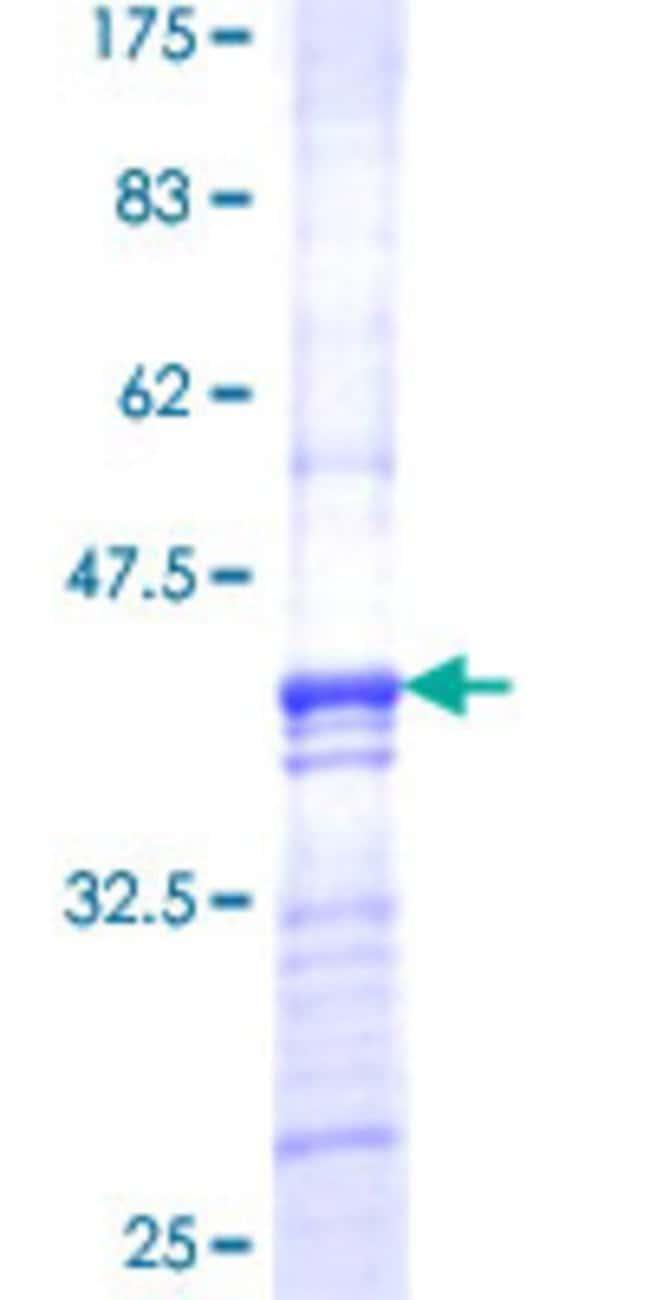 AbnovaHuman PMPCB Partial ORF (NP_004270, 161 a.a. - 269 a.a.) Recombinant