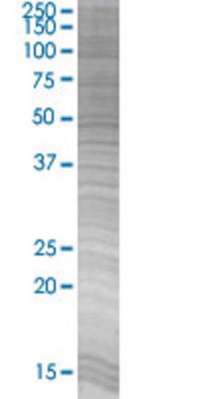 Abnova LITAF 293T Cell Transient Overexpression Lysate (Denatured) 100µL:Life