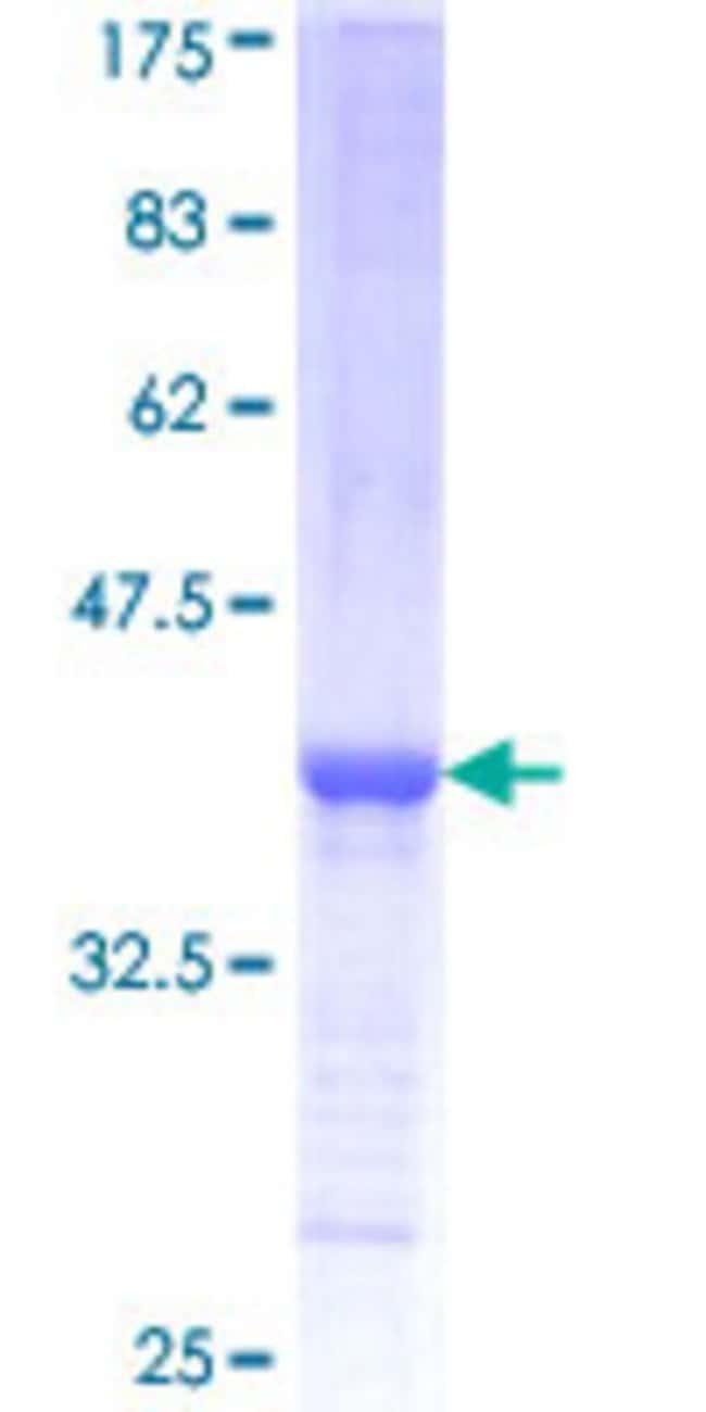 AbnovaHuman SPTLC2 Partial ORF (NP_004854, 453 a.a. - 561 a.a.) Recombinant