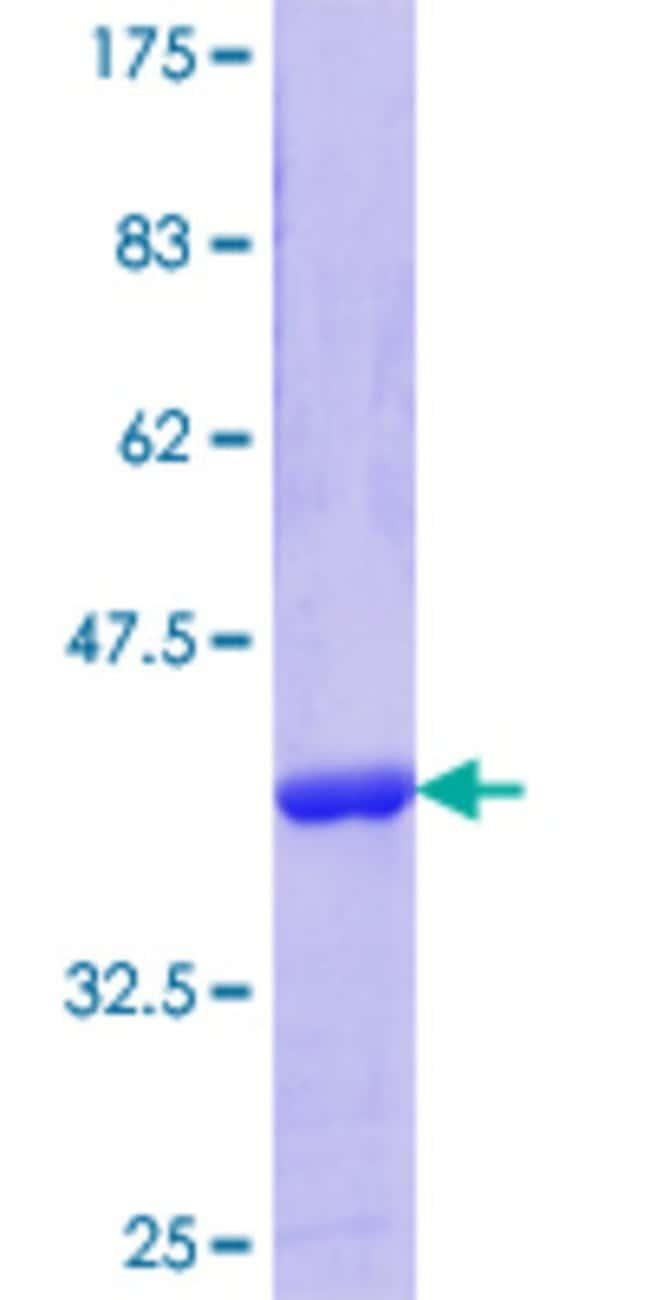 AbnovaHuman GOSR1 Partial ORF (NP_004862.1, 2 a.a. - 100 a.a.) Recombinant