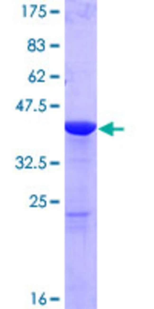 AbnovaHuman GMFG Full-length ORF (NP_004868.1, 1 a.a. - 142 a.a.) Recombinant