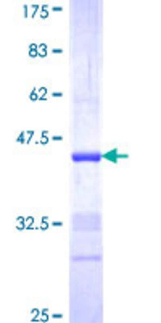 AbnovaHuman NRG2 Partial ORF (NP_004874, 116 a.a. - 215 a.a.) Recombinant