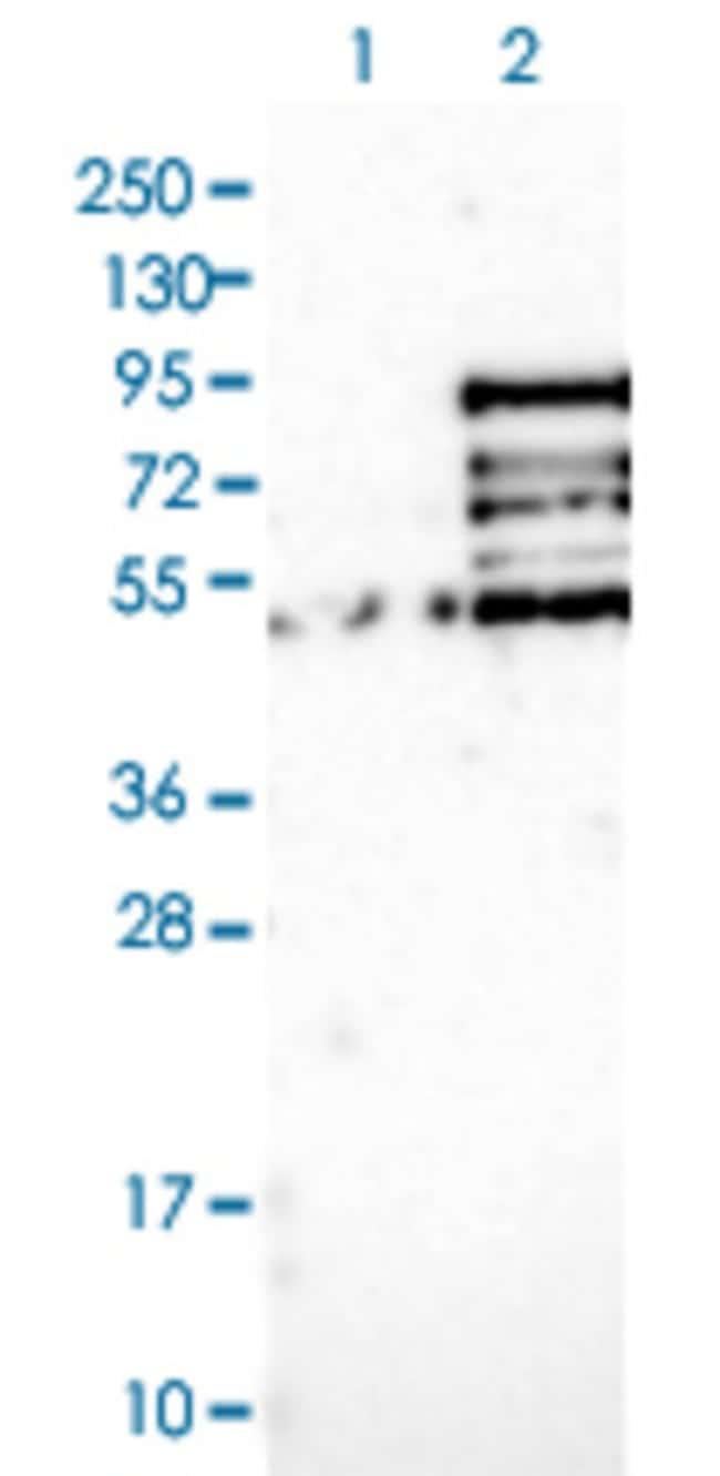 MSL2 Rabbit anti-Human, Polyclonal , Abnova 100μL; Unlabeled:Antibodies
