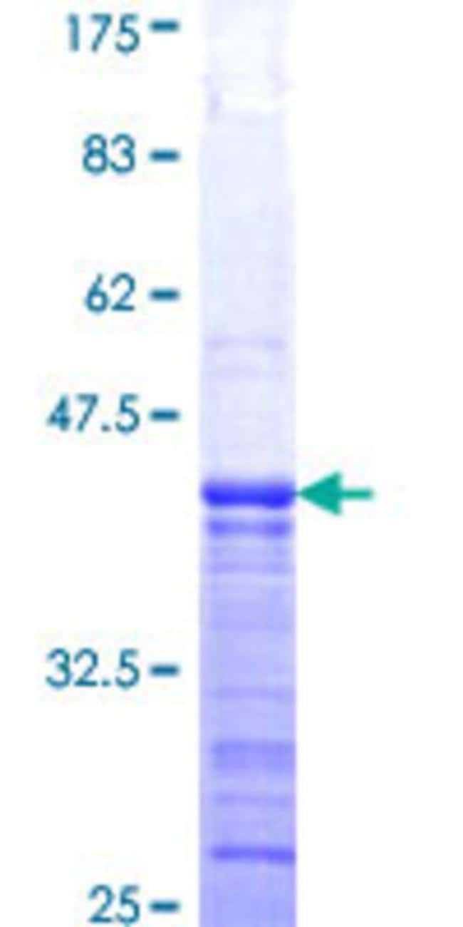 Abnova Human GTPBP1 Partial ORF (NP_004277, 1 a.a. - 76 a.a.) Recombinant