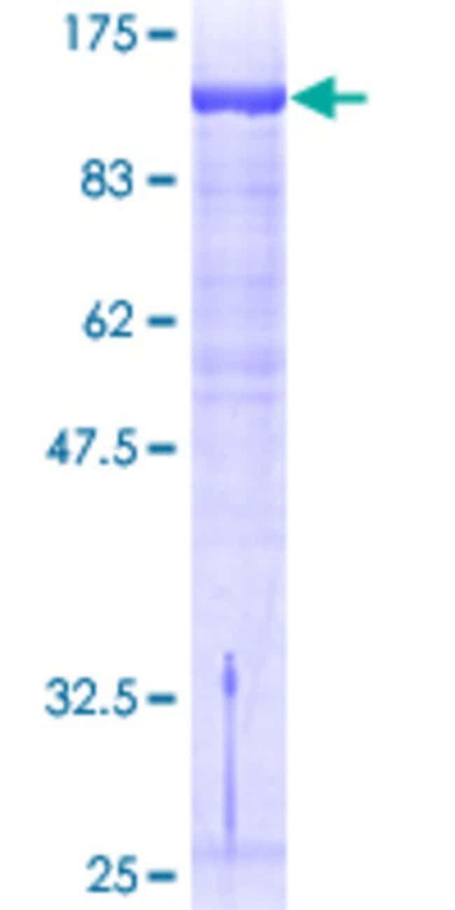 AbnovaHuman GTF2IRD1 Full-length ORF (AAH18136, 1 a.a. - 959 a.a.) Recombinant