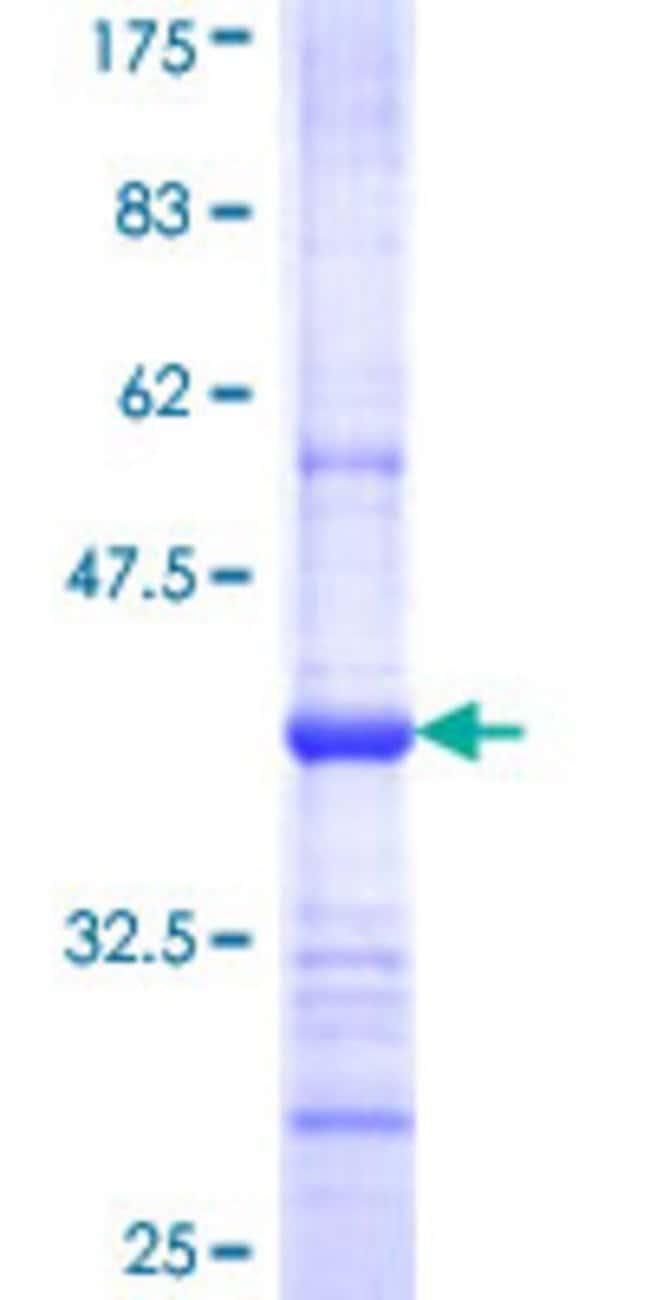 AbnovaHuman GDF3 Partial ORF (NP_065685, 265 a.a. - 364 a.a.) Recombinant