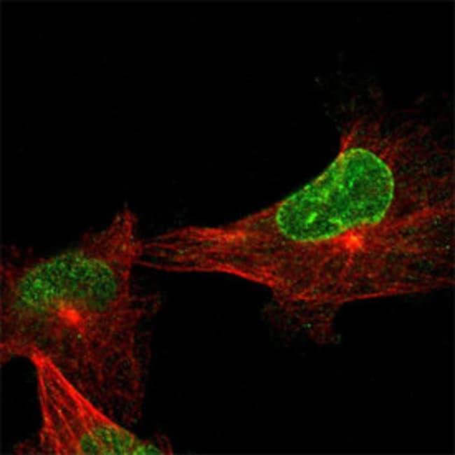 SYNE2 Rabbit anti-Human, Polyclonal , Abnova 100μL; Unlabeled:Antibodies