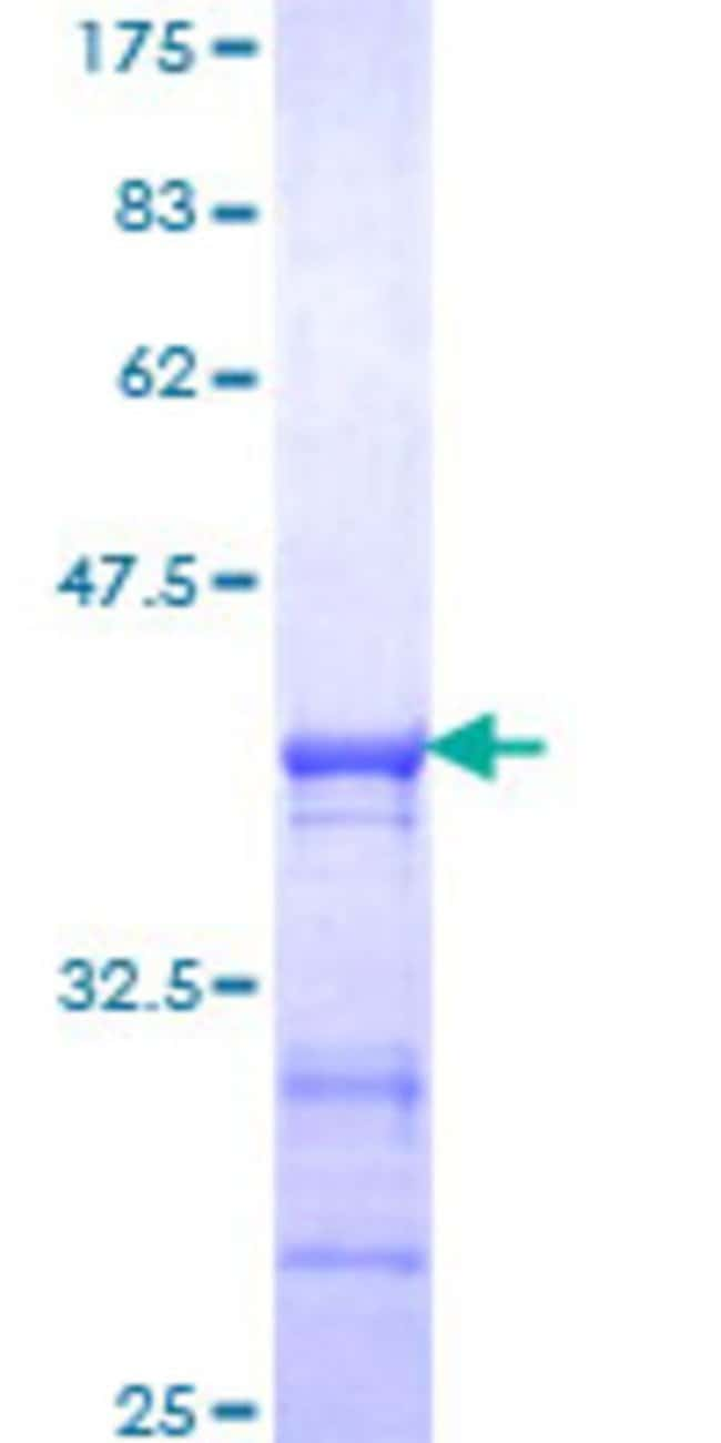 Abnova™Human CLOCK Partial ORF (NP_004889, 497 a.a. - 596 a.a.) Recombinant Protein with GST-tag at N-terminal 10μg Abnova™Human CLOCK Partial ORF (NP_004889, 497 a.a. - 596 a.a.) Recombinant Protein with GST-tag at N-terminal