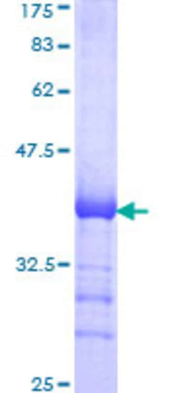 AbnovaHuman CDC42BPB Partial ORF (AAD37506, 1580 a.a. - 1679 a.a.) Recombinant