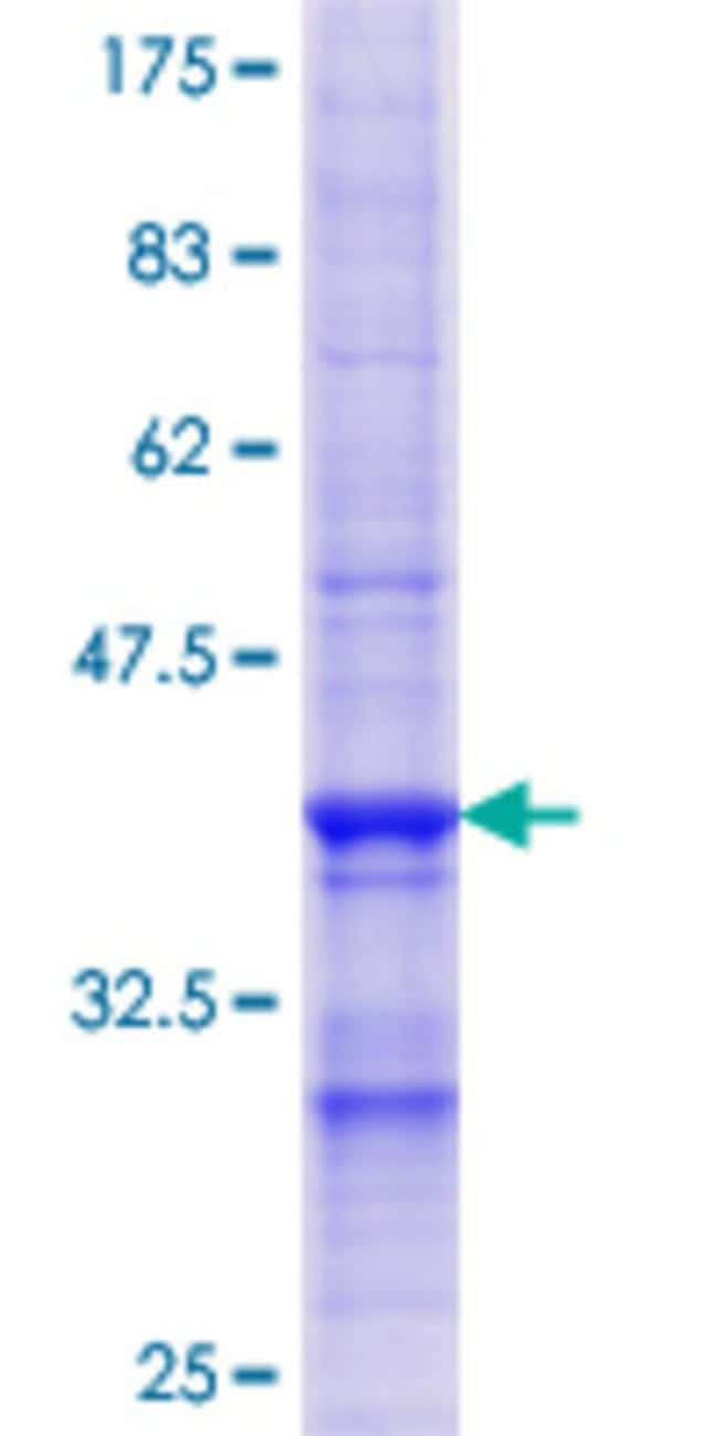 AbnovaHuman ENTPD4 Partial ORF (NP_004892.1, 371 a.a. - 469 a.a.) Recombinant