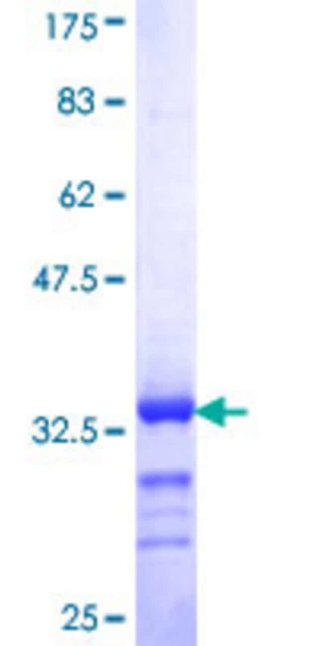 AbnovaHuman RNPC2 Partial ORF (NP_909122, 423 a.a. - 472 a.a.) Recombinant