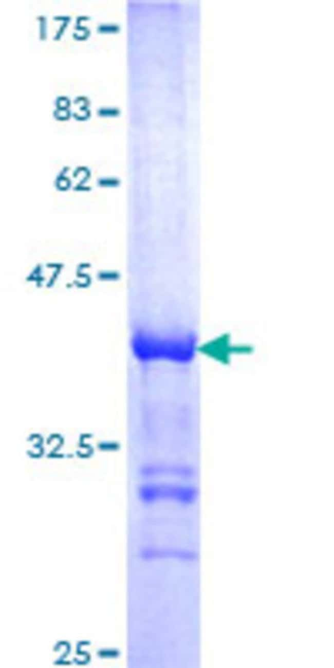 Abnova™Human CREB5 Partial ORF (NP_001011666, 1 a.a. - 99 a.a.) Recombinant Protein with GST-tag at N-terminal 10μg Abnova™Human CREB5 Partial ORF (NP_001011666, 1 a.a. - 99 a.a.) Recombinant Protein with GST-tag at N-terminal