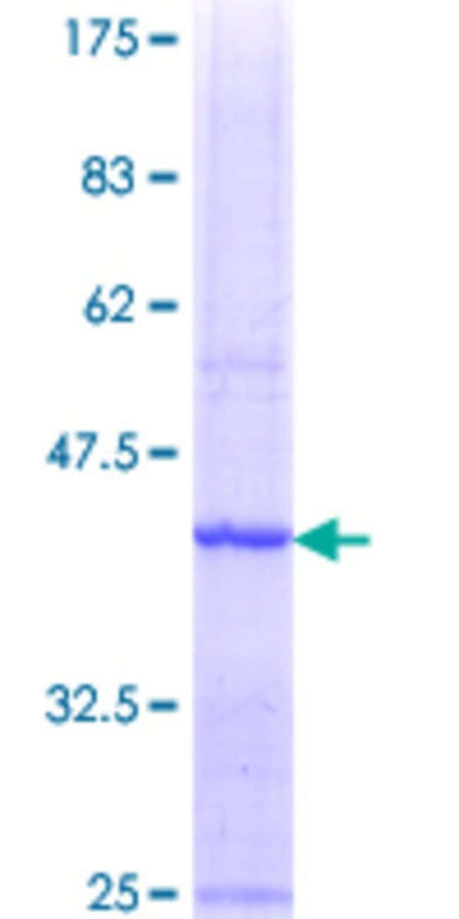 Abnova™ Human MAD2L1BP Partial ORF (NP_055443.1, 171 a.a. - 274 a.a.) Recombinant Protein with GST-tag at N-terminal 10μg Abnova™ Human MAD2L1BP Partial ORF (NP_055443.1, 171 a.a. - 274 a.a.) Recombinant Protein with GST-tag at N-terminal