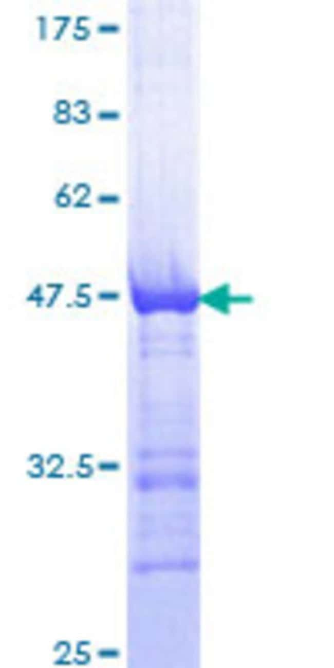 Abnova™Human AKAP12 Partial ORF (NP_005091, 1675 a.a. - 1782 a.a.) Recombinant Protein with GST-tag at N-terminal 25μg Abnova™Human AKAP12 Partial ORF (NP_005091, 1675 a.a. - 1782 a.a.) Recombinant Protein with GST-tag at N-terminal