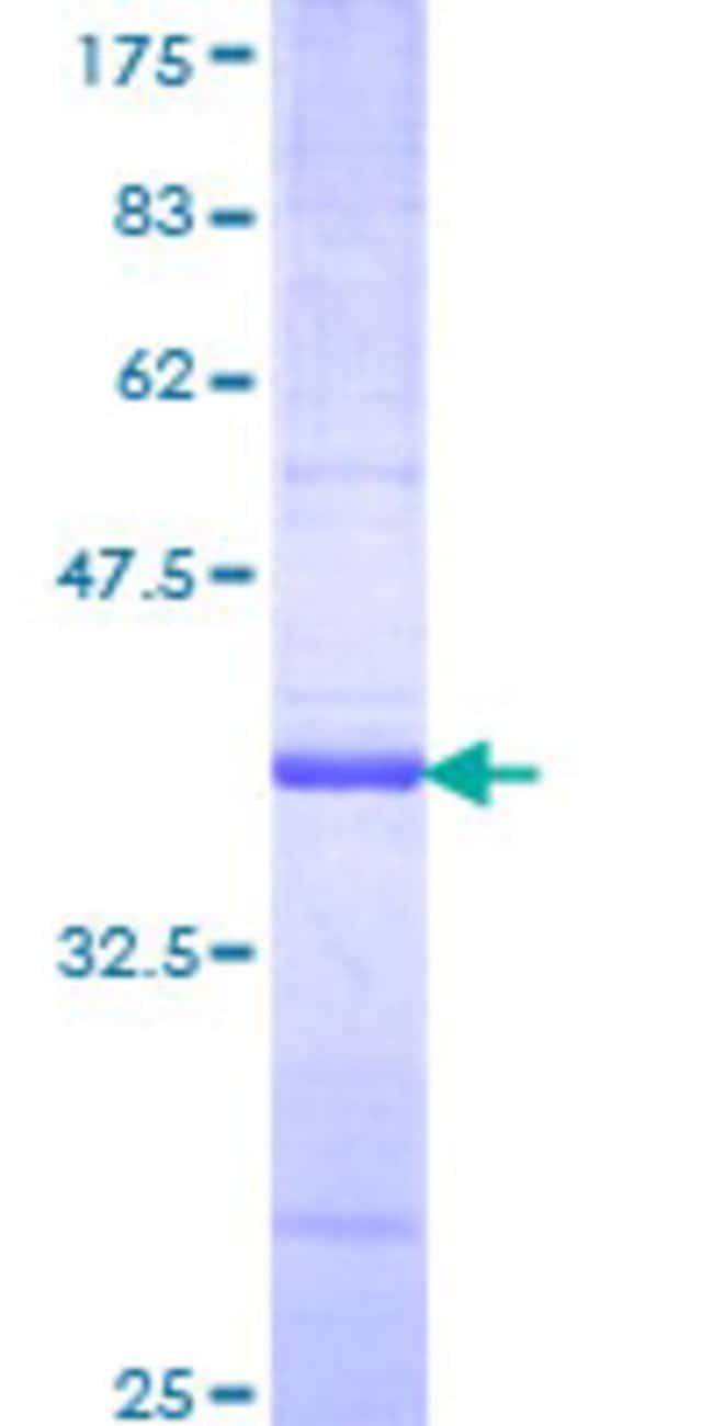 AbnovaHuman RNF14 Partial ORF (NP_004281, 217 a.a. - 316 a.a.) Recombinant