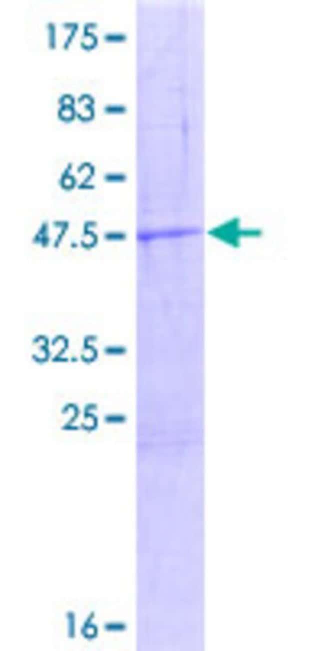 AbnovaHuman MTRF1 Full-length ORF (ENSP00000239852, 1 a.a. - 151 a.a.)