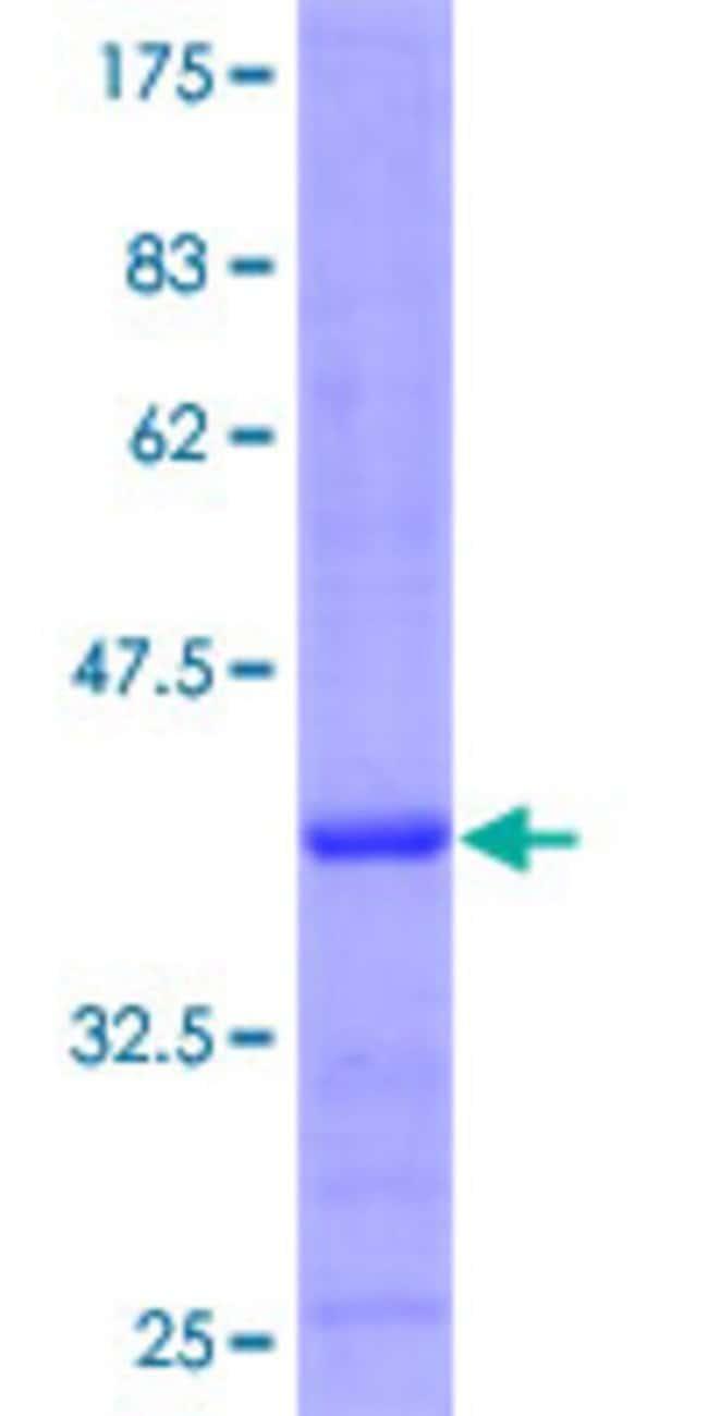 AbnovaHuman MTRF1 Partial ORF (NP_004285.2, 1 a.a. - 100 a.a.) Recombinant