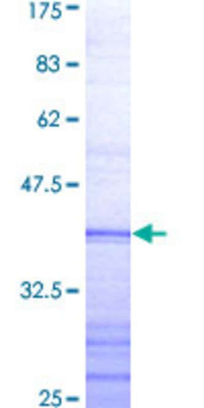 Abnova™Human TRAF4 Partial ORF (AAH01769, 371 a.a. - 470 a.a.) Recombinant Protein with GST-tag at N-terminal 25μg Abnova™Human TRAF4 Partial ORF (AAH01769, 371 a.a. - 470 a.a.) Recombinant Protein with GST-tag at N-terminal