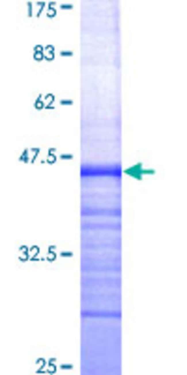 AbnovaHuman ABCG1 Partial ORF (AAH29158, 21 a.a. - 130 a.a.) Recombinant