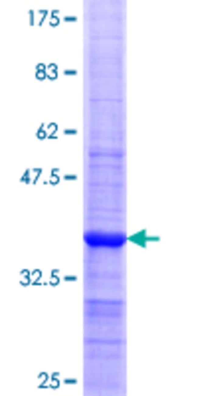 Abnova Human KLK4 Partial ORF (NP_004908.2, 159 a.a. - 254 a.a.) Recombinant