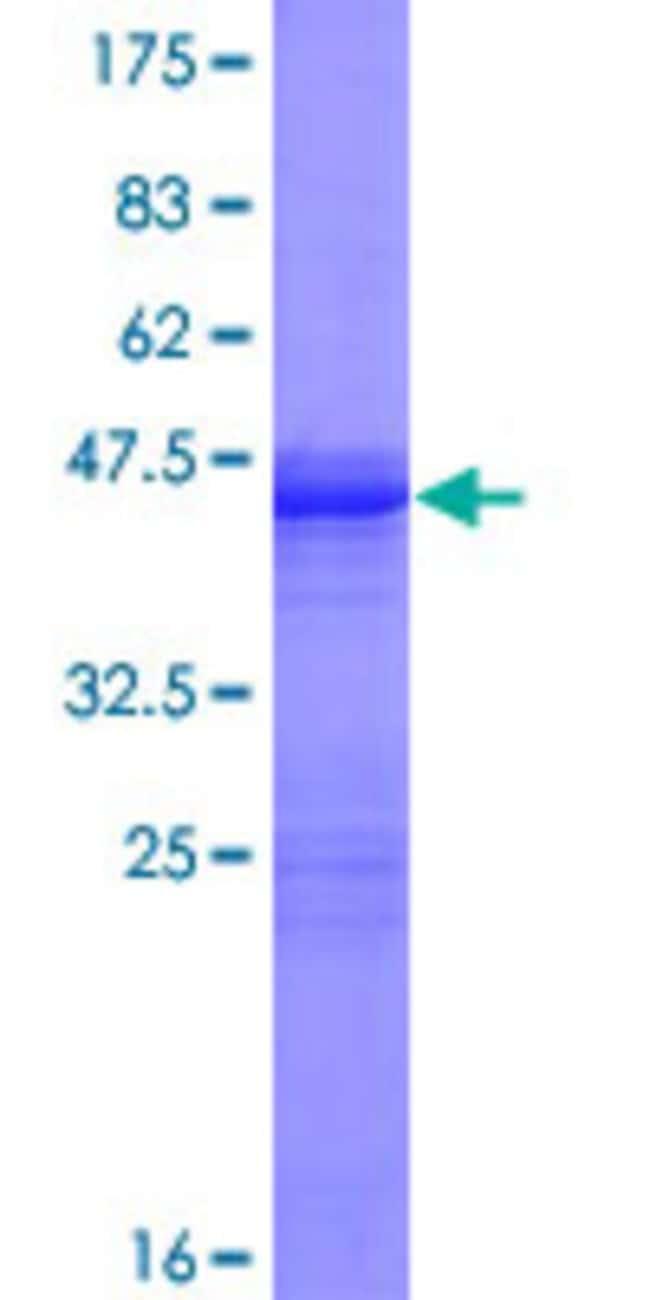 Abnova Human GUCA1C Full-length ORF (NP_005450.2, 1 a.a. - 209 a.a.) Recombinant