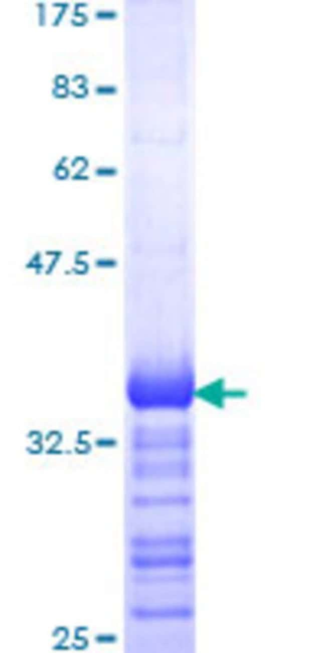 AbnovaHuman SNCAIP Partial ORF (NP_005451, 206 a.a. - 309 a.a.) Recombinant