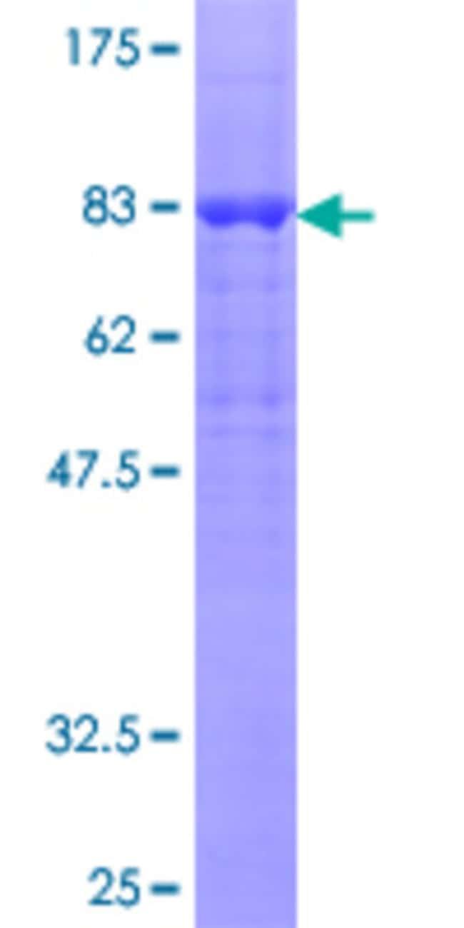 Abnova Human RGS6 Full-length ORF (NP_004287.3, 1 a.a. - 472 a.a.) Recombinant