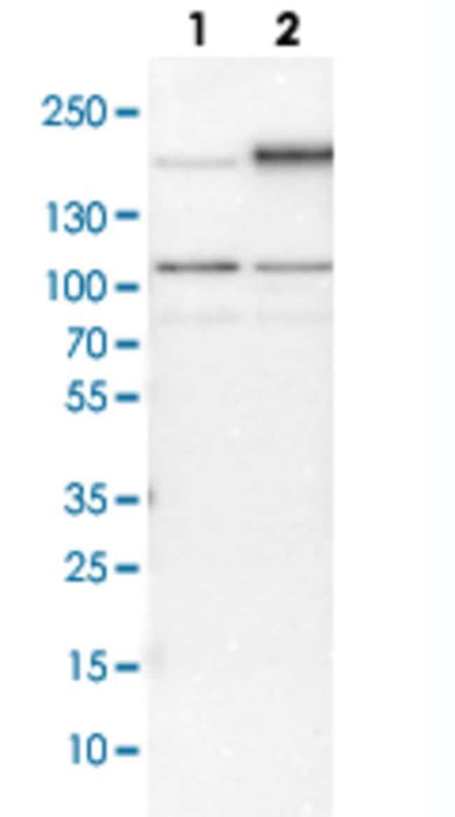 EGFR Rabbit anti-Human, Mouse, Rat, Polyclonal , Abnova 100μL; Unlabeled:Antibodies