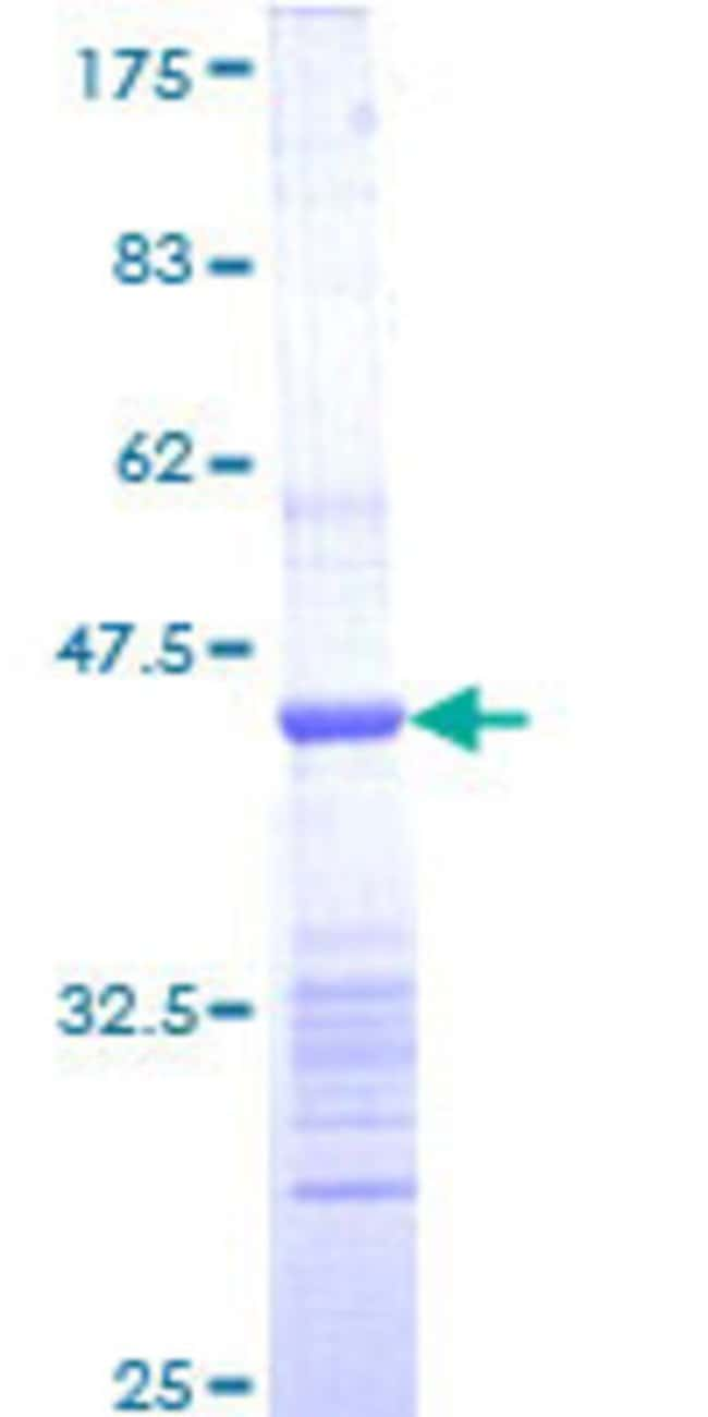 Abnova™ Human RGS6 Partial ORF (NP_004287, 207 a.a. - 306 a.a.) Recombinant Protein with GST-tag at N-terminal 10μg Abnova™ Human RGS6 Partial ORF (NP_004287, 207 a.a. - 306 a.a.) Recombinant Protein with GST-tag at N-terminal