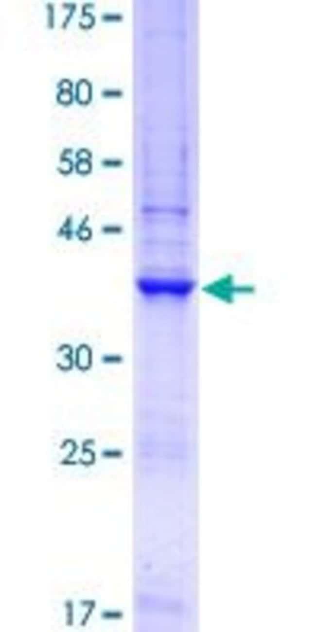 AbnovaHuman GNA14 Partial ORF (AAH27886.1, 150 a.a. - 250 a.a.) Recombinant