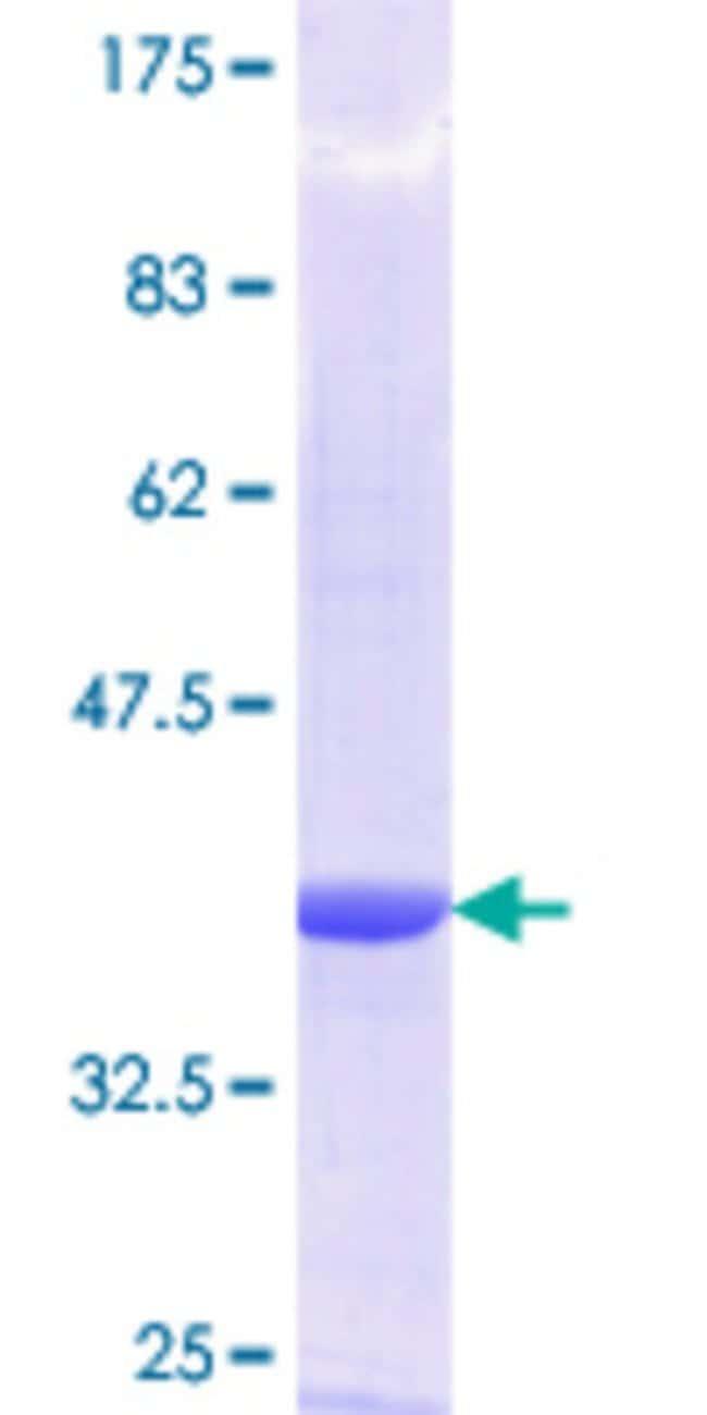 AbnovaHuman G1P2 Partial ORF (NP_005092.1, 1 a.a. - 100 a.a.) Recombinant
