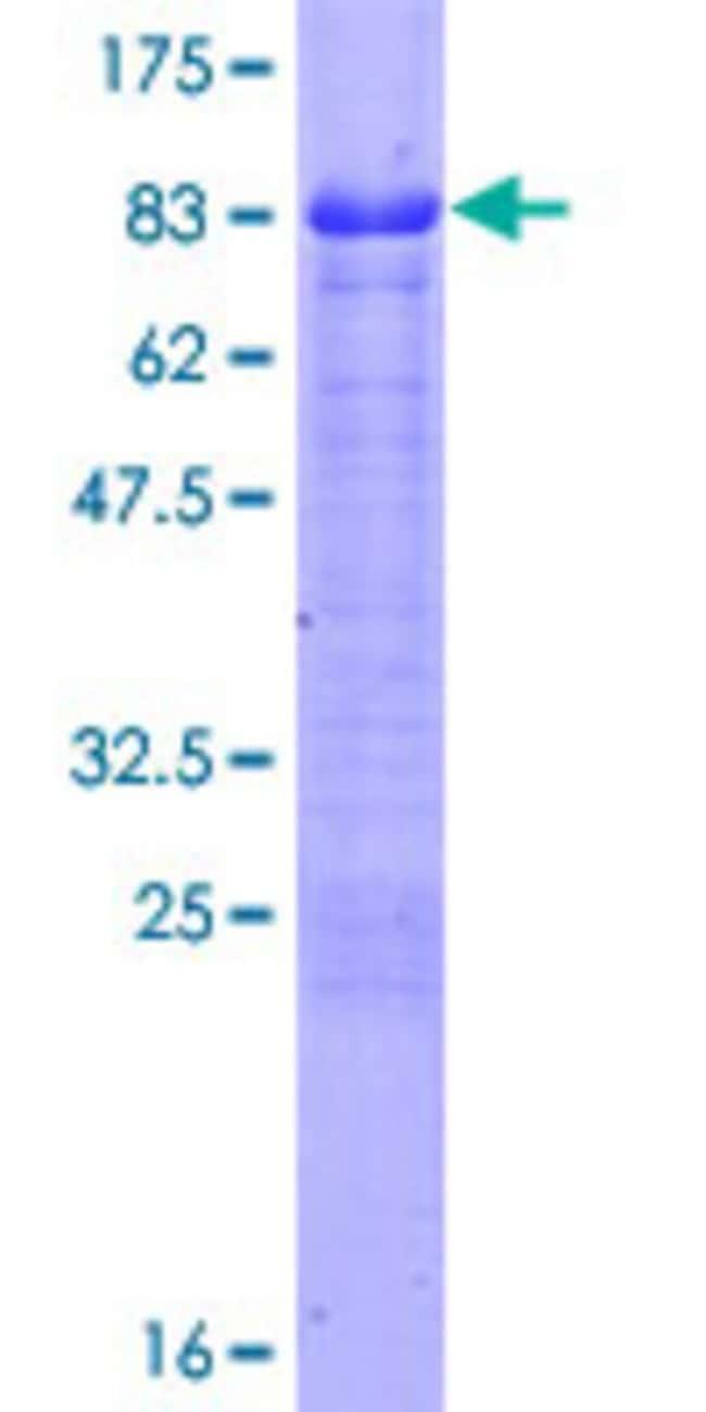AbnovaHuman FEZ1 Full-length ORF (NP_005094.1, 1 a.a. - 392 a.a.) Recombinant