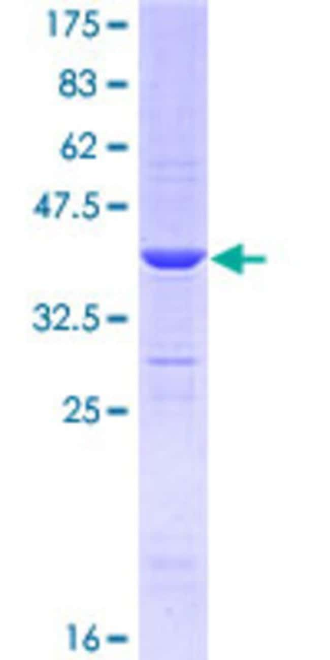 Abnova™Human ARHGEF10 Partial ORF (NP_055444, 792 a.a. - 890 a.a.) Recombinant Protein with GST-tag at N-terminal 25μg Abnova™Human ARHGEF10 Partial ORF (NP_055444, 792 a.a. - 890 a.a.) Recombinant Protein with GST-tag at N-terminal