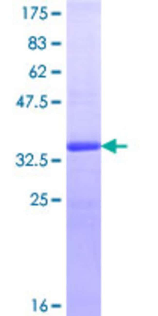 Abnova Human MICAL2 Partial ORF (NP_055447.1, 1021 a.a. - 1123 a.a.) Recombinant
